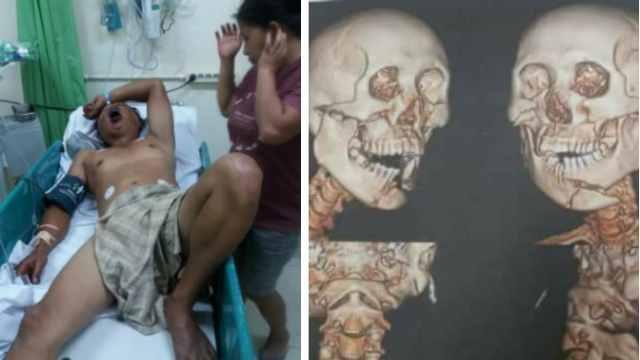 Korban Penganiayaan di Polsek Tompaso Baru dan Gambar Hasil Scan