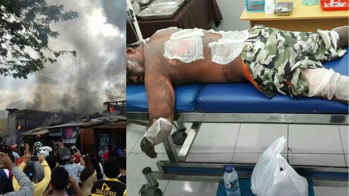 Korban yang mengalami luka bakar akibat kebakaran di Pasar Cita