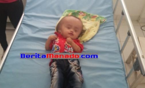 Besok !!! Direncanakan Bayi Penderita Hidrosefalus Minsel Akan Dioperasi