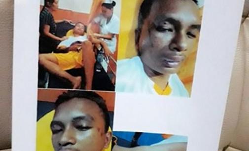 Puluhan Polisi Sabhara Penganiaya 5 Remaja Diduga Mabuk, Ini Foto-foto Korban yang Babak Belur